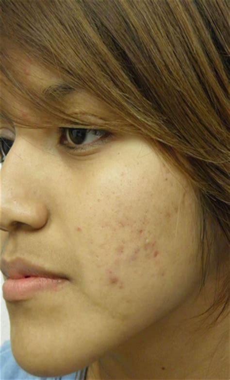 cara menghilangkan flek hitam di muka cara menghilangkan noda hitam bekas jerawat paling ampuh