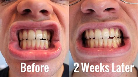 teeth whitening blanx white shock  led bite review