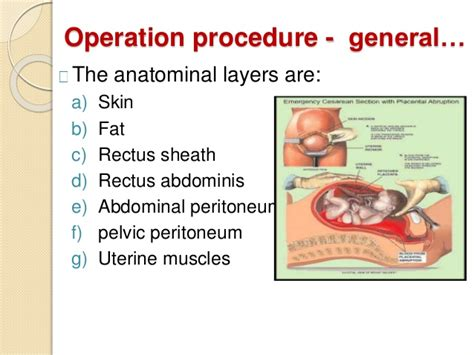 layers of abdomen in c section caesareansection best