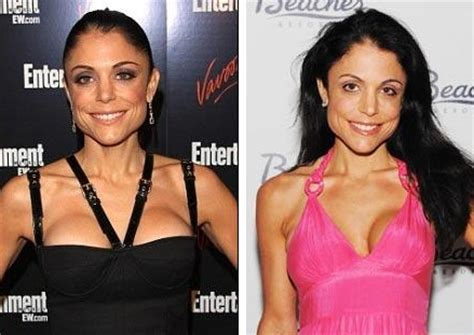 bethenny frankel plastic surgery before and after bethenny frankel plastic surgery before and after
