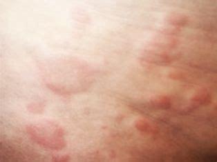 sintomi allergia alimentare sito in manutenzione quot