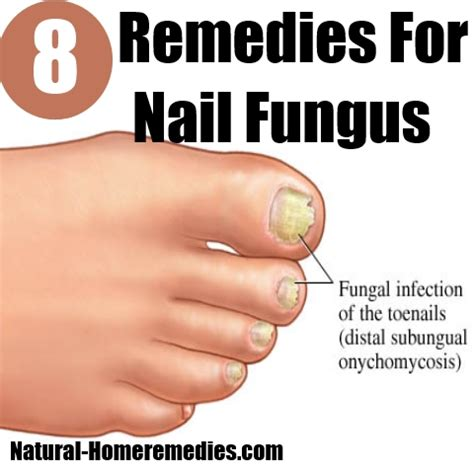 8 home remedies for nail fungus treatments