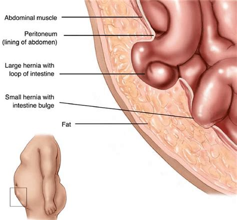about your hernia inguinal hernia symptoms causes hernia symptoms california hernia specialists