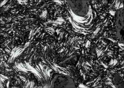 mosaic pattern of lamellar bone figure11 endotext