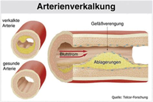 Arginin Bluthochdruck Ohne Chemie Senken Burgdorf