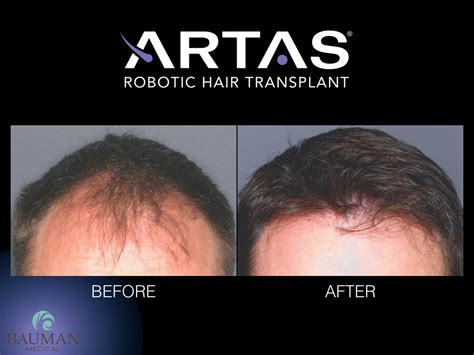 dr bauman offers no linear scar hair transplants with artas robotic fue hair transplant boca raton florida
