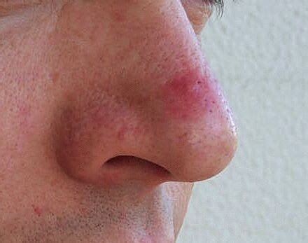 how to cure a red swollen nose rosacea support group rosacea pictures papules pustules red nose and acne