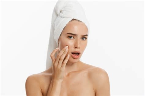 produk skincare terbaik  kulit berjerawat