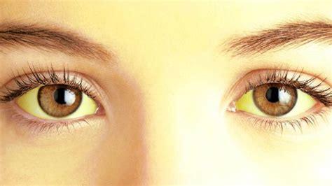 el cuerpo eyes 191 por qu 233 los ojos se ponen amarillos causas de la ictericia