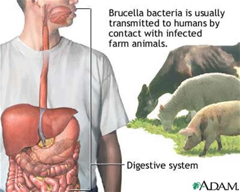 brucellosis in dogs brucellosis