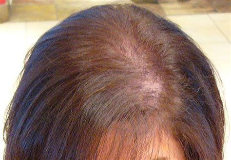 female pattern hair loss medscape female hair loss living with disability