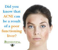 Liver Detox For Cystic Acne by Milk And Acne Does Milk Cause Acne This Really