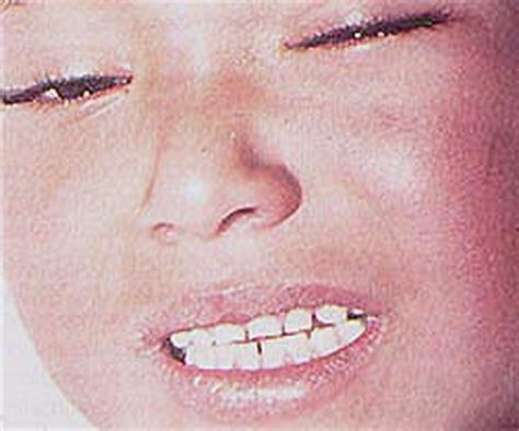 imagenes enfermedad kawasaki niños imagenes enfermedades kawasaki
