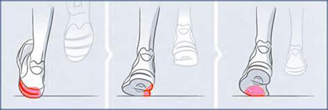 Pied Qui Tourne Vers L Exterieur by Acheter Ses Chaussures De Course 3 Astuces Pour Bien