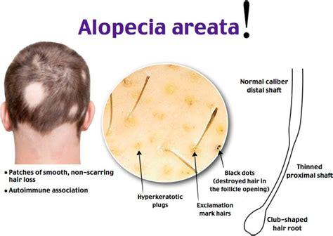 how to cut alepecia areata hair rosh review dermatology pinterest medicine nclex
