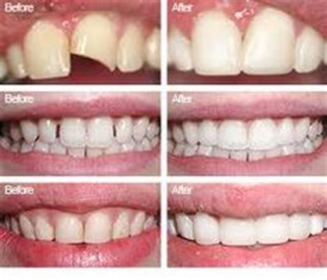 diy dental bonding dental bonding is a and affordable way to fix