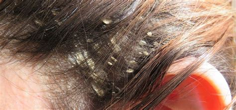Does Dryer Cause Dandruff 4 home made remedies that get rid of dandruff