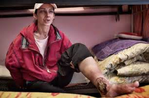 Krokodil drug effects face russian hiv surge shows scourge sochi
