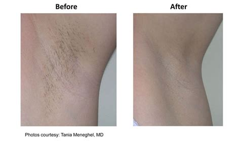 Laser Hair Removal Shedding Process by Laser Hair Removal