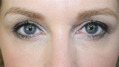 Vitamin Charmant 5 behandelingen om rimpels onder je ogen te verminderen
