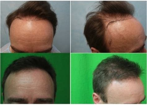 how to fix an afro hairline hairline repair dermhair clinic los angeles 1 310 318 1500