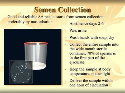 how does urine stay at room temperature ppt analysis and preparation powerpoint presentation id 476840