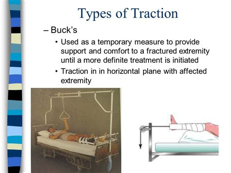 bucks traction picture skeletal traction vs bucks traction pictures to pin on