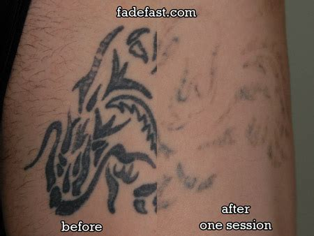 tattoo removal youngstown ohio tattoo removal training los angeles all about tattoo