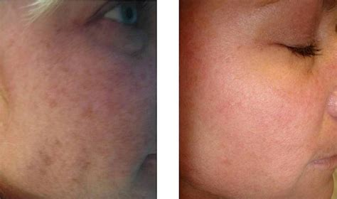 light scar treatment light acne scars decoratingspecial com