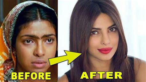 priyanka chopra fiance age gap priyanka chopra plastic surgery photos before after