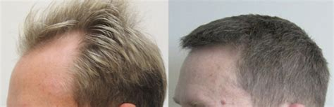 fue hair transplant reviews fue hair transplant toronto read my review dr rahal
