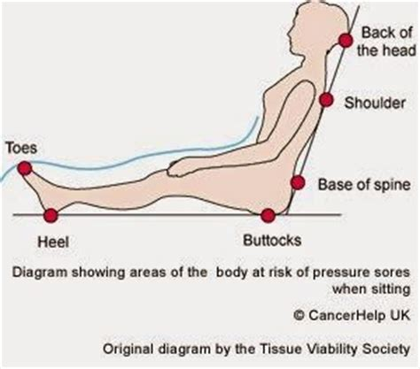 how to prevent bed sores on buttocks health health articles and articles on pinterest