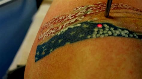 how to remove tattoo in singapore picosure painless tattoo removal combined enlighten