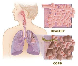 Obat Telat Bulan Lung Askep Chronic Obstructive Pulmonal Disease Copd