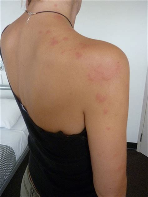 can bed bugs cause hives bed bug bites cause hives and rashes everything health