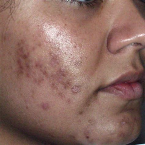 Acnes Spot 5 Easy Ways To Remove Acne Scars Naturally Bellatory