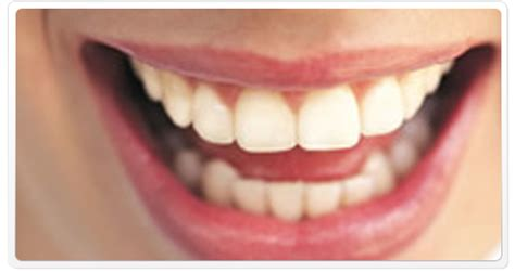 kings walk dental practice teeth whitening