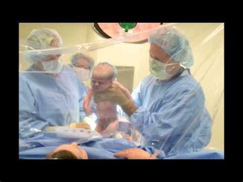 c section game full download c section birth with clear drape