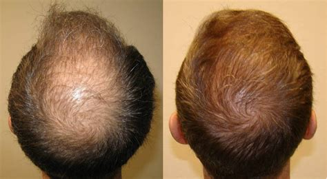 post hair transplant timeline post hair transplant timeline photos hairstylegalleries com