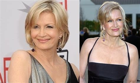 Celebrity Neck Lift | diane sawyer plastic surgery or graceful ageing