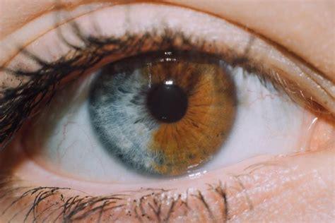 what color is iris what is heterochromia iridis photo of s split iris