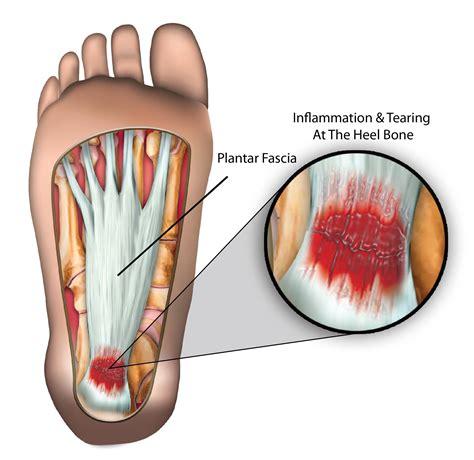planters fasciitis symptoms plantar fasciitis symptoms and management sportnova uk