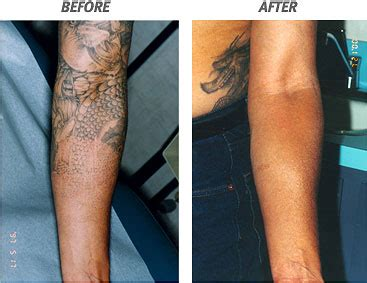 scarring after laser tattoo removal laser removal scars pictures wallpaper pictures