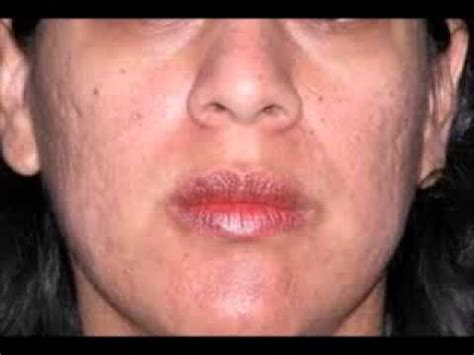 actress with acne even celebrities with zits and pimples need my free report