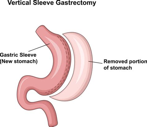 gastric bypass diagram 5 gastric bypass surgery diagrams
