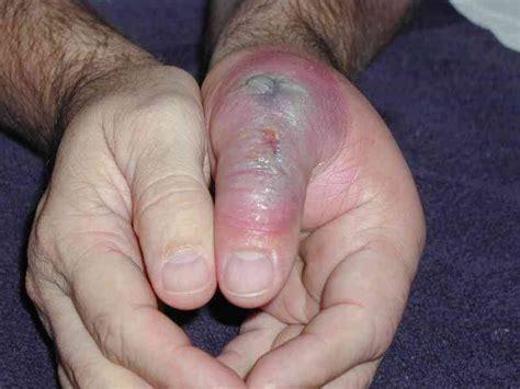 bite bacteria human skin parasites spider bites