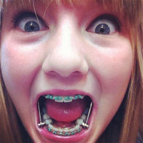 zahnspange gestell kopf zahnspange herbstscharnier oder headgear au 223 enbogen
