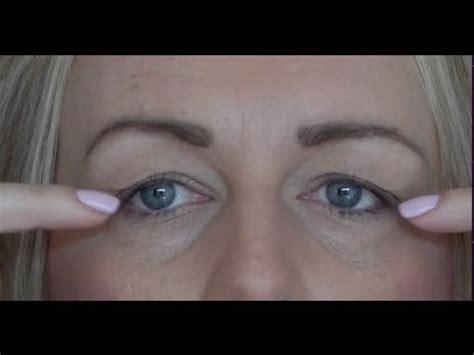 droopy eye hqdefault jpg