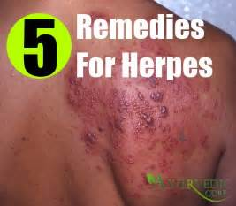 herpes treatment at home herpes home remedies treatments cure usa uk