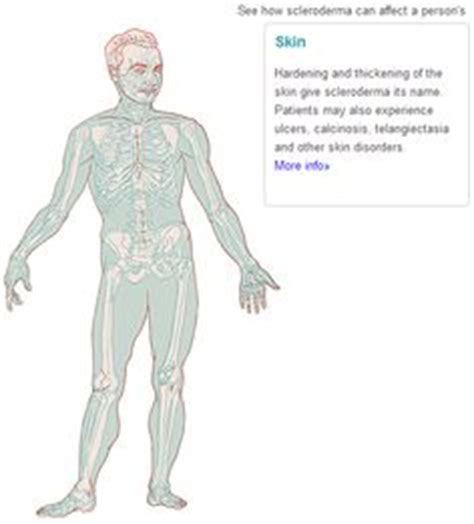 Scleroderma on Pinterest   Autoimmune, The Body and Cute Frogs